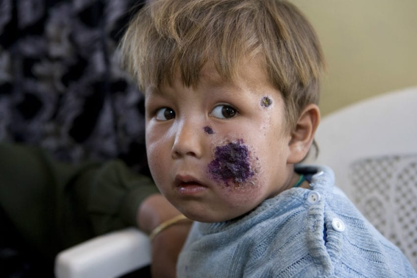 A girl at a clinic in Kabul, Afghanistan, with lesions on her face caused by cutaneous leishmaniasis. Exposed skin is more vulnerable to sand fly bites