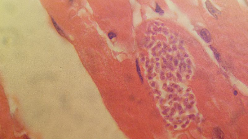 A microscope image of a section of infected mammal cardiac muscle. The parasite enters a cell and then multiplies, forming what is called a pseudocyst (seen on the right). This comprises up to 400 parasites in a single cell. Eventually, the cells rupture, releasing parasites into the bloodstream
