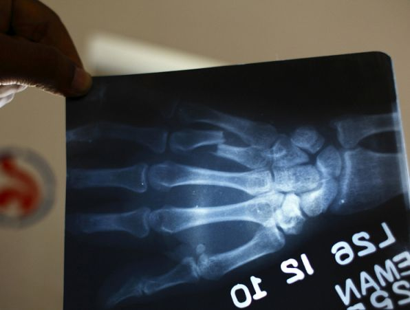 An x-ray of the broken finger