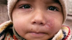 Arab countries caught in a cycle of war and disease