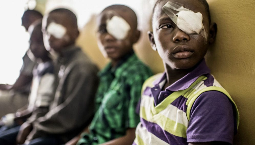 eye surgery at the Mnazi Mmoja hospital