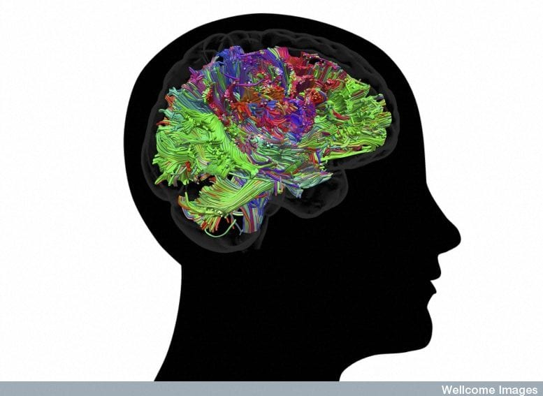 human brain by wellcome images