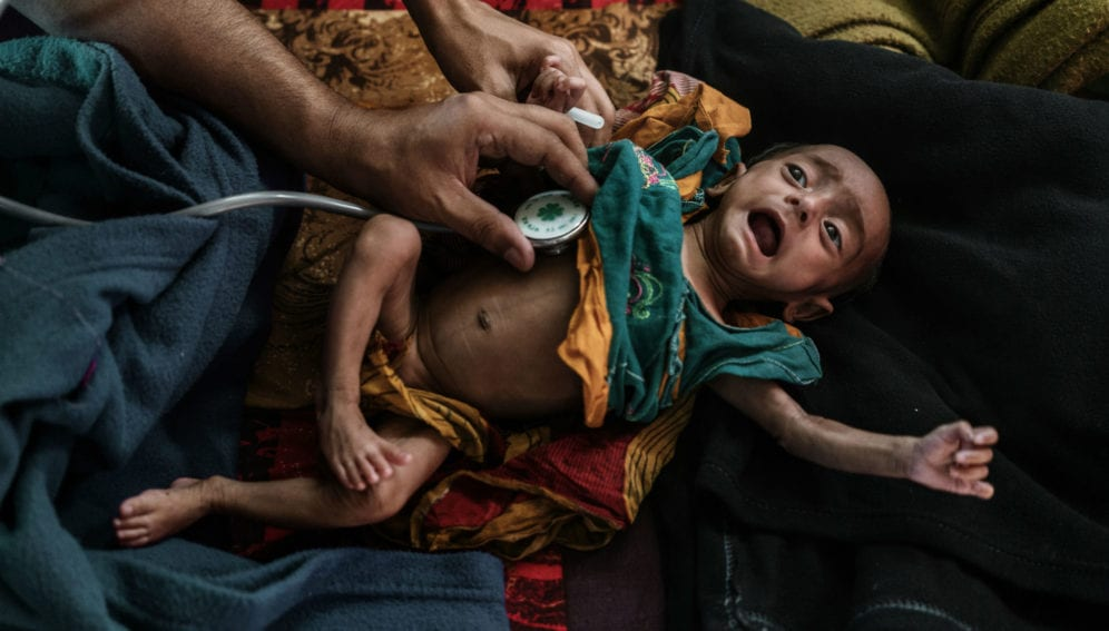 Refugee suffering from Severe Acute Malnutrition
