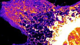 Why sharing bioimaging tech is crucial to global health