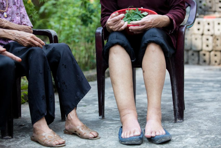 lymphedema caused by lymphatic filariasis