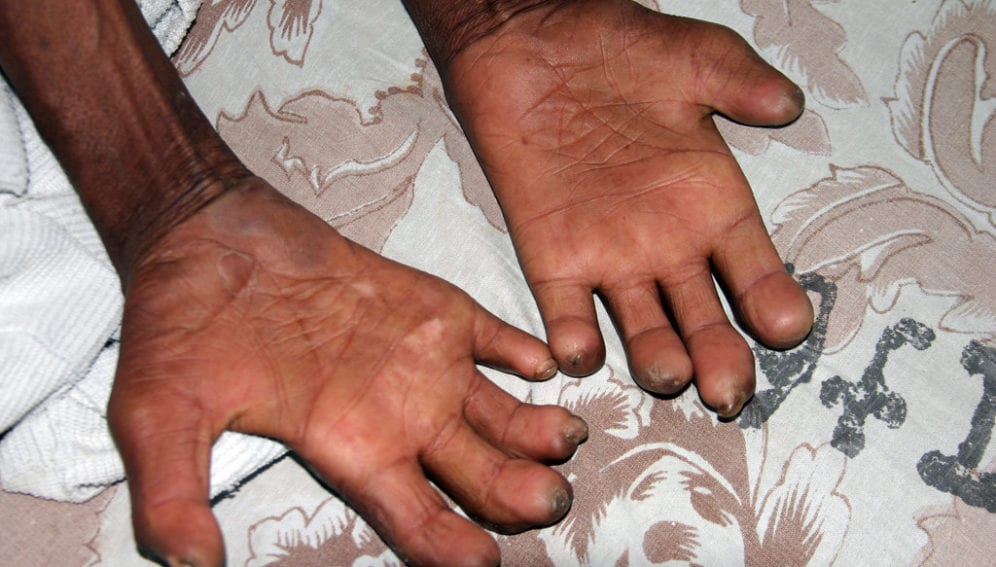 """Leprosy Patient"" by ReSurge International is licensed under CC BY-NC-ND 2.0"