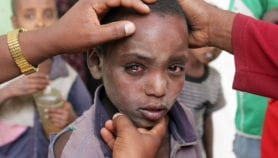 Facial hygiene, water access 'could prevent trachoma'