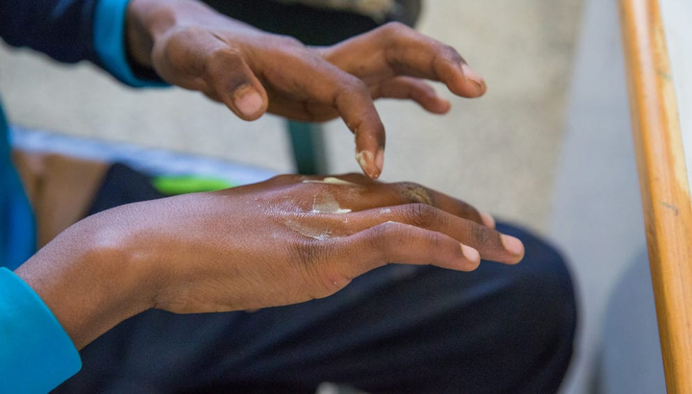 Scabies response in drought-affected areas
