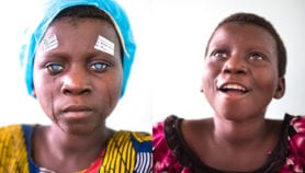 One billion people have preventable blindness globally