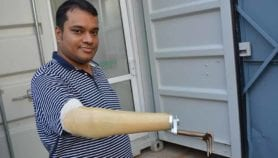 Prosthetics designers harness AI to assist India's amputees