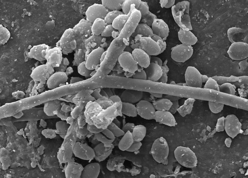 Fungal spores can be seen along a crack in a microplastic particle.